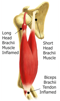 A Drawing of the 2 Types of Bicep Tendonitis - Long Head Brachii Muscle and Biceps Brachii Tendon Inflammation
