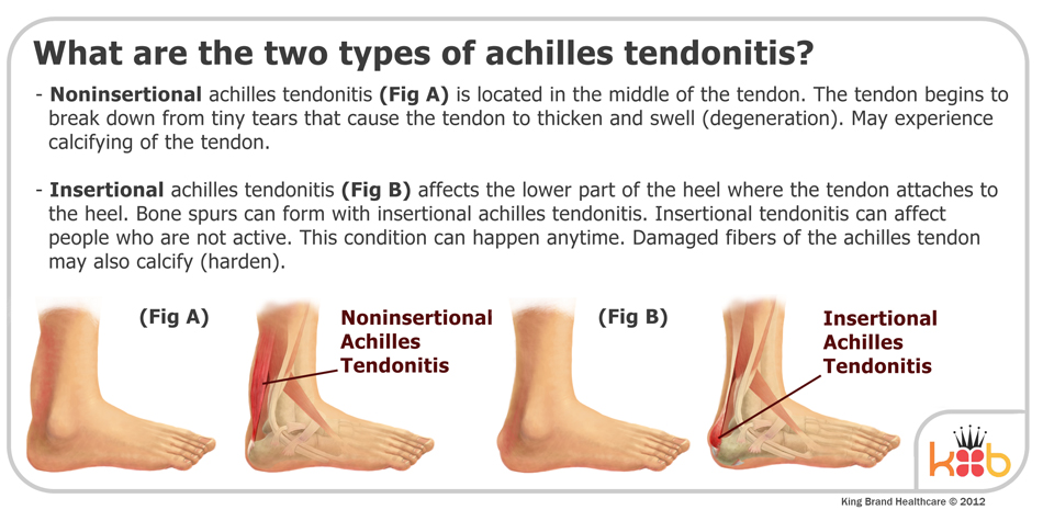 King Brand Two Types of Achilles Tendonitis Image Explanation Diagram Ankle Injuries