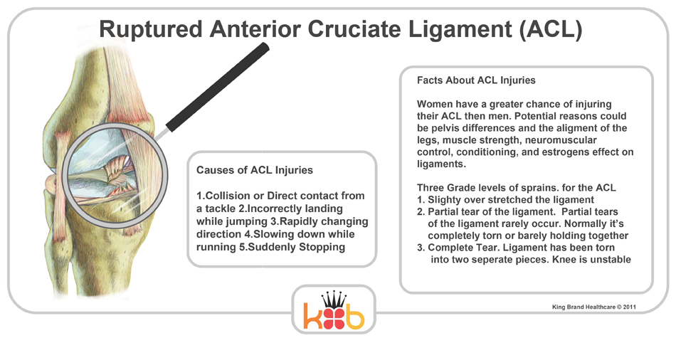 Facts and Causes About ACL Injuries King Brand Healthcare Products Diagram Image Knee Injury