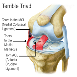 Kingbrand Illustration the Terrible Triad Injury