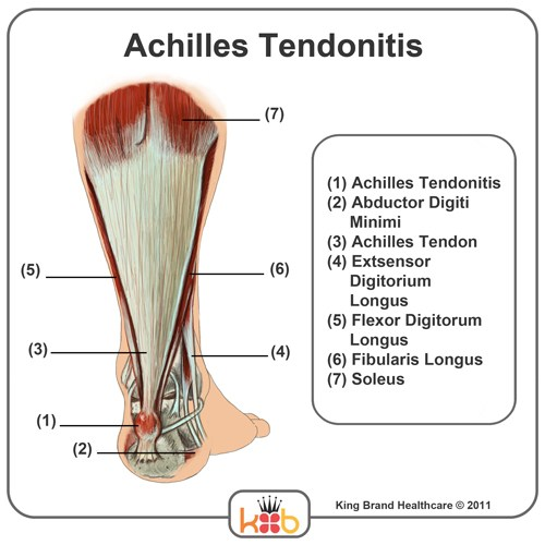 A Detailed Diagram of What Achilles Tendonitis is and Where it Occurs