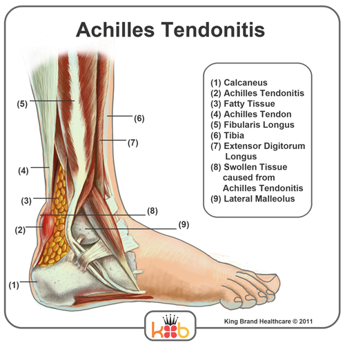 Achilles Tendonitis Injury Image Diagram King Brand Ankle Injury Solutions