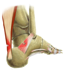 Back View of an Achilles Ankle Injury Showing Bone and Tendons