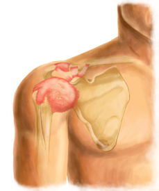 Adhesive Capsulitis Treatment