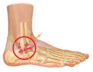 Ankle Ligament Injury Treatment