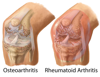 Arthritis Management