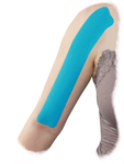 King Brand Bicep Tendonitis Taping Option 3