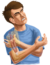 An Illustration of a Person Suffering From a Bicep Tendonitis Injury