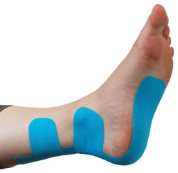 King Brand® Blue Support Tape Applied to a Foot
