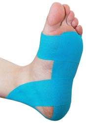 Plantar Fasciitis Tape Treatment