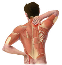 X-Ray View of Back Pain in the Muscles of the Back
