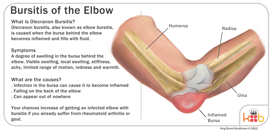 King Brand Olecranon Bursitis Elbow Treament Information and Diagram