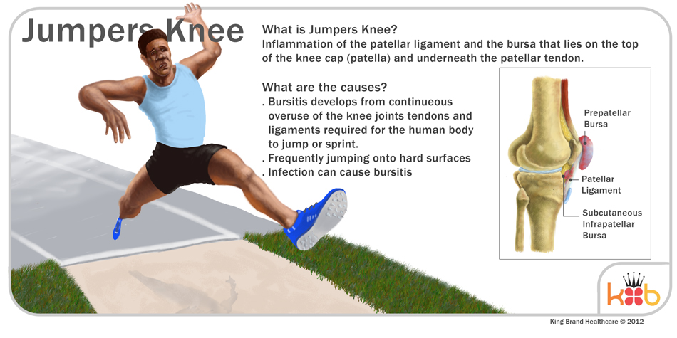 King Brand Jumper's Knee Explaination Information Image Diagram Knee Injury Solutions Ice Packs Wraps