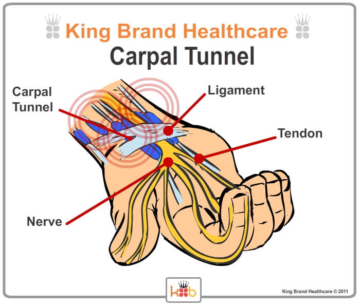 King Brand Carpal Tunnel Injury Solutions BFST and Coldcure Wraps Labelled Diagram Ligaments Nerves Tendons