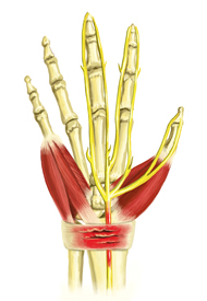 An illustration of a skeletal hand with lots of inflammation