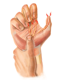 An illustration of a hand suffering from carpal tunnel syndrome