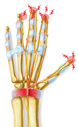 An illustration of the pain and tingling associated with Carpal Tunnel injuries