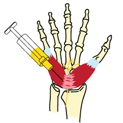King Brand Carpal Tunnel Cortisone Treatment Illustration