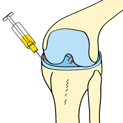 Injured Meniscus Cortisone Treatment