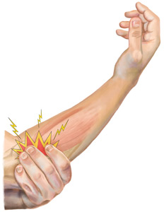 An Illustration of an Arm Suffering from Extensor Tendonitis
