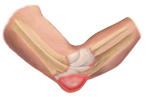 Elbow Bursitis Treatment