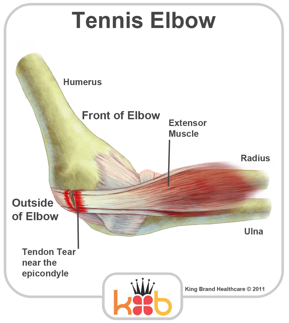 King Brand Labelled Diagram Teniis Elbow Injuries Solutions BFST Coldcure Wraps