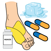 Foot Flexor Tendonitis Injury Treatment