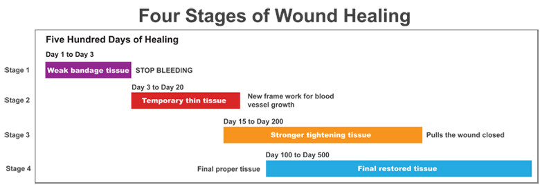 Four Stages of Wound Healing