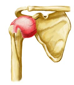 Frozen Shoulder is a Painful Injury that Can be Quickly Recovered From with the Help of King Brand Products