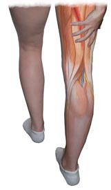 An Illustration of an Injured Hamstring