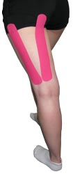 Hamstring Tape Treatment