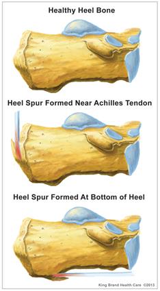 superior heel spur treatment  hell spur inguries