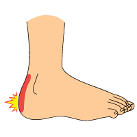Signs of Heel Bursitis and Plantar Fasciitis