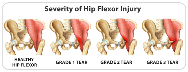 King Brand Severity of Hip Flexor Injuries and Grades of Tears Compared to Healthy Hip Flexor