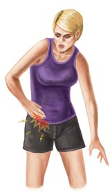 An Illustration of a Woman With a Hip Flexor Injury