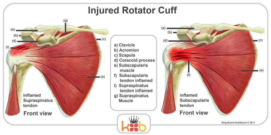 King Brand Injured Rotator Cuff Front View Muscles Bones Diagram Labelled
