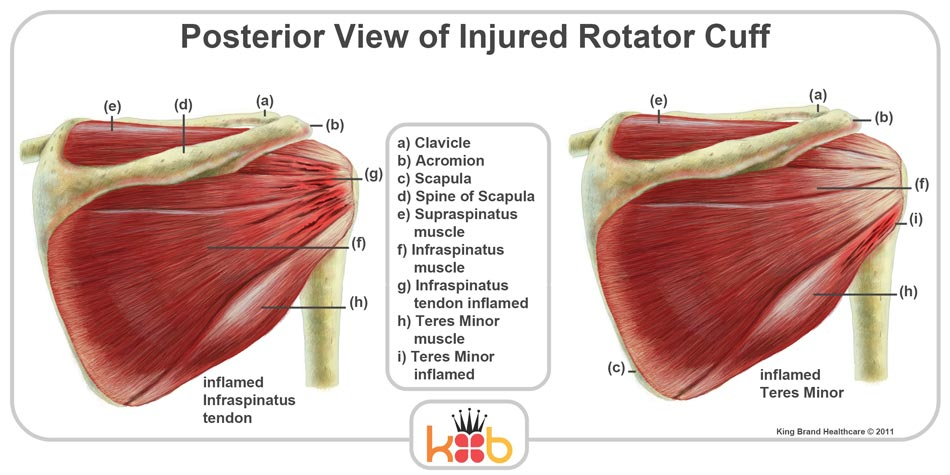 King Brand Injured Rotator Cuff Back Posterior View Muscles Bones Diagram Labelled