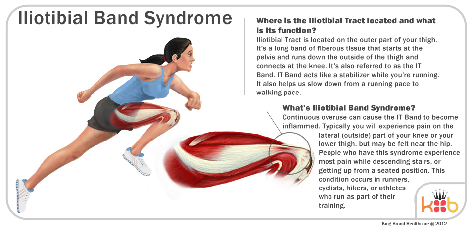 Iliotibial Band Syndrome Injury Treatment Information and Illustration