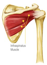 Infraspinatus Muscle Diagram Illustration by King Brand