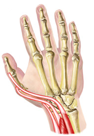 An illustration of a hand suffering from Intersection Syndrome
