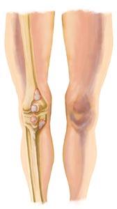 King brand knee images king brand knee bursitis injury image ccuart Choice Image