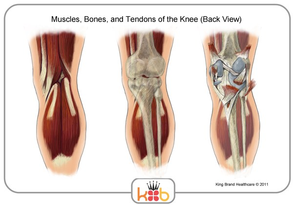 King Brand Back View of the Knee Diagram Labels King Brand Knee Injury Muscles Bones Tendons