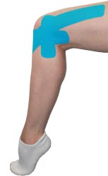 Kingbrand Blue Taping for the Lateral Knee