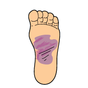 KB Foot Tendonitis Signs and Symptoms