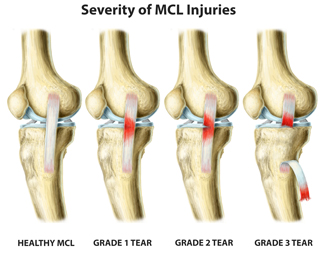 Picture Showing Grades Of MCL Injury