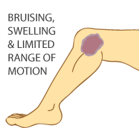 King Brand Torn MCL Symptoms Illustration