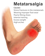 Natural Treatment For Foot Swelling