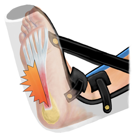 Night Splints are Damaging