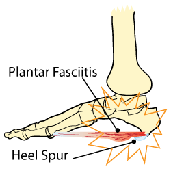 King Brand Plantar Fasciitis vs Heel Spur Anatomy Illustration