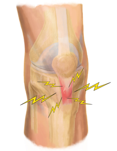 Professional Patellar Tendonitis Treatment